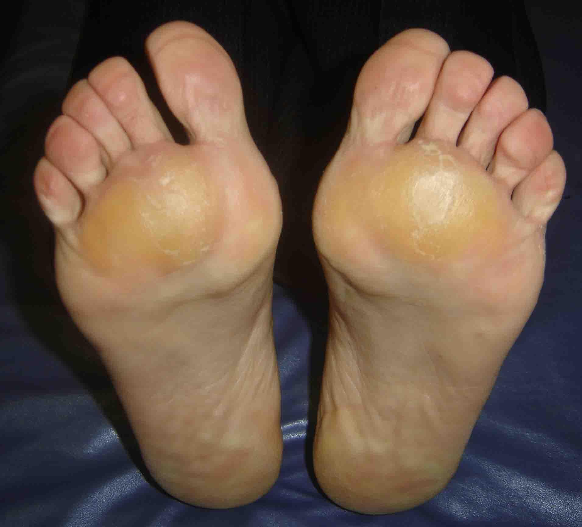 vindeca frecare între picioare