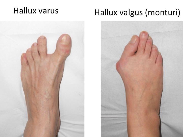 Comparatie Varus-valgus