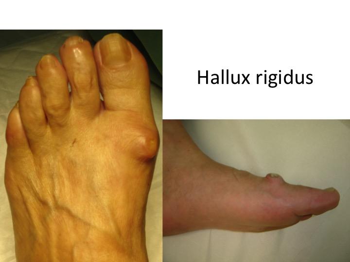 HALLUX RIGIDUS