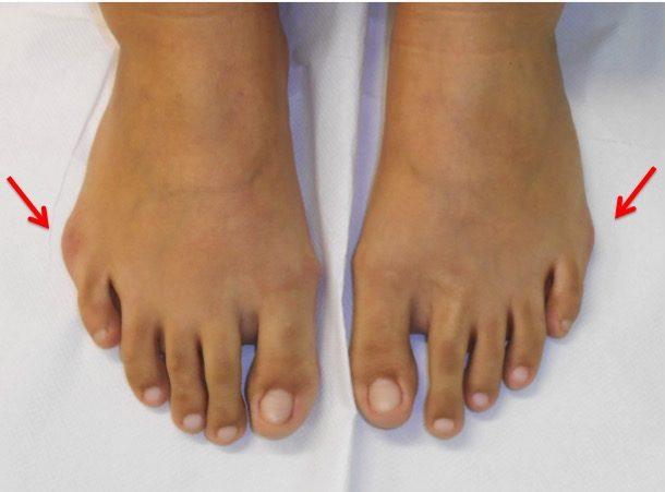 artroza degetului mic pe tratamentul piciorului